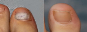 Laser Fungal Nail Treatment