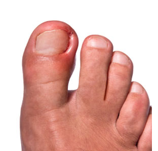 Ingrown Toenail Gone Bad